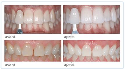 blanchiment des dents rabat prix